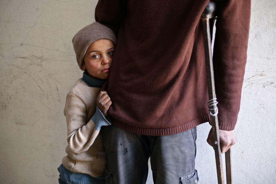 A Syrian girl hugs her injured father in the rebel-held town of al-Nashabiyah, east of Damascus, on Nov. 30. More than 340,000 people have been killed in Syria since the conflict began in March 2011 with anti-government protests.