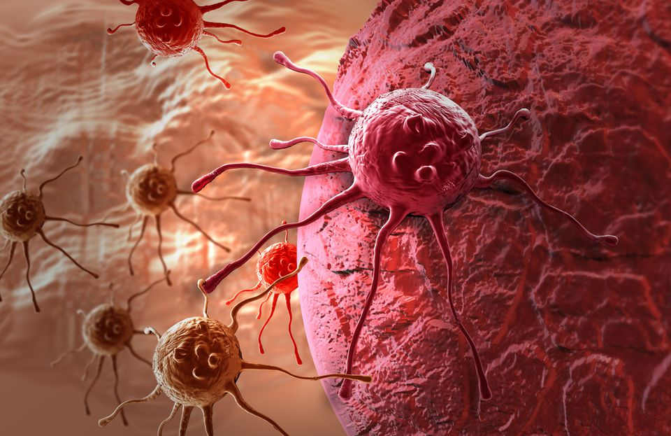 Cancer cell shown in 3-D software.