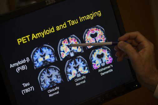 Photo of 5 advances in Alzheimer's research and treatment that could make a difference