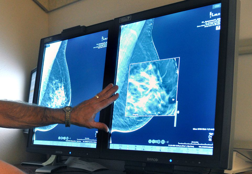 The American Cancer Society recognized on Tuesday that its previous guidelines on breast cancer screening were too aggressive.