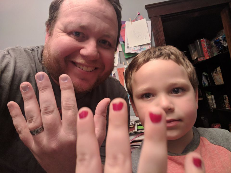 Aaron Gouveia and his 5-year-old son, Sam, show off their nails after Sam was bullied at school.