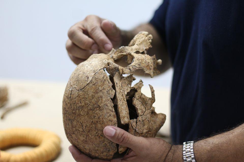 Saul Quijada examines the machete wound on the skull of a victim of the <br/>El Mozote massacre.